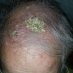 Dermatologie du sujet âgé
