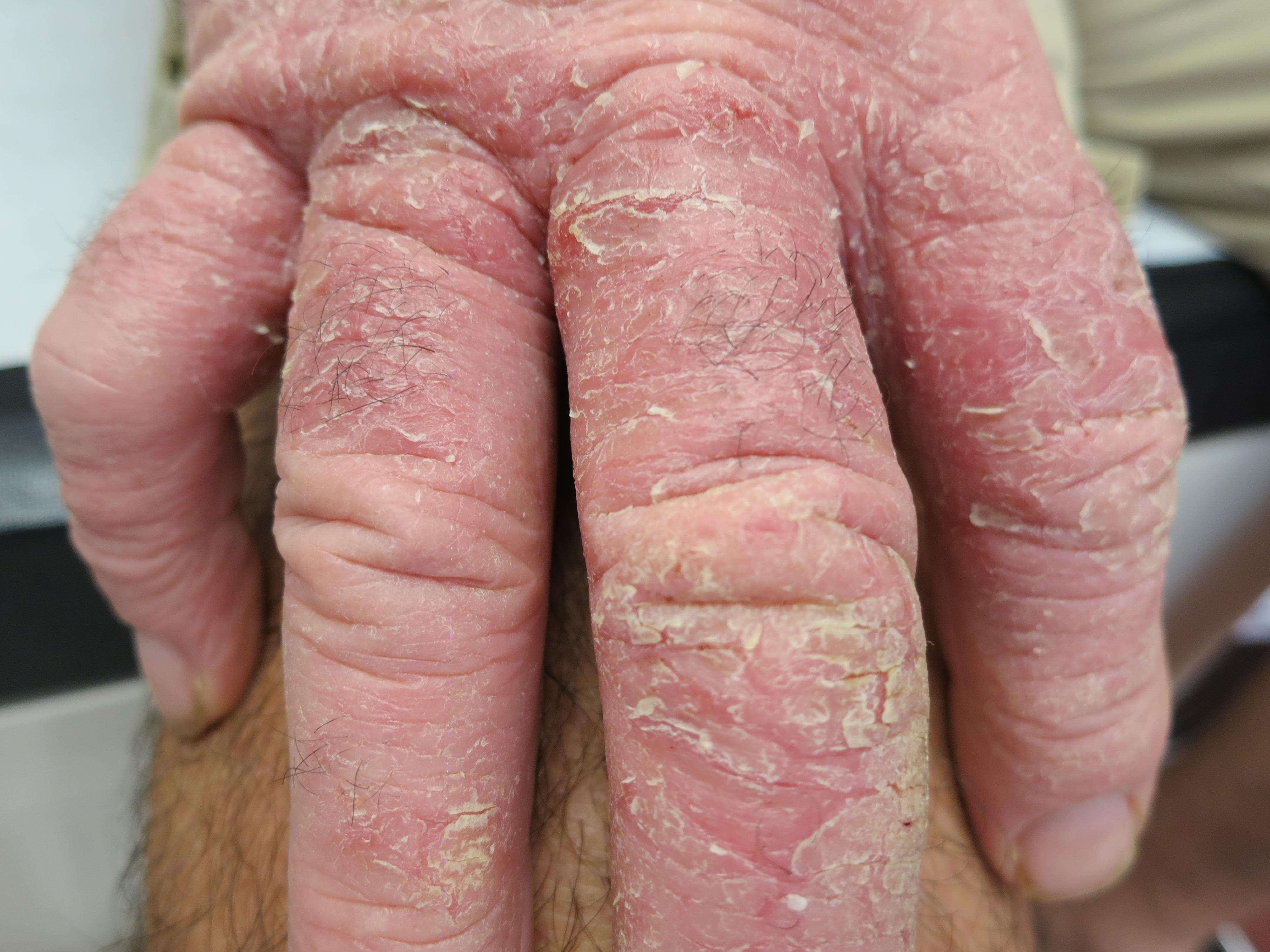 Le psoriasis vite les rappels