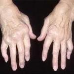 Arthrose des deux mains