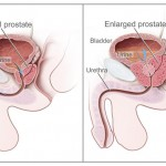 L'hypertrophie prostatique